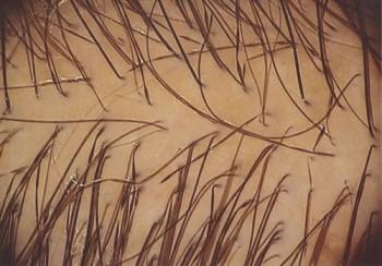 Трихология лечение выпадения волос екатеринбург
