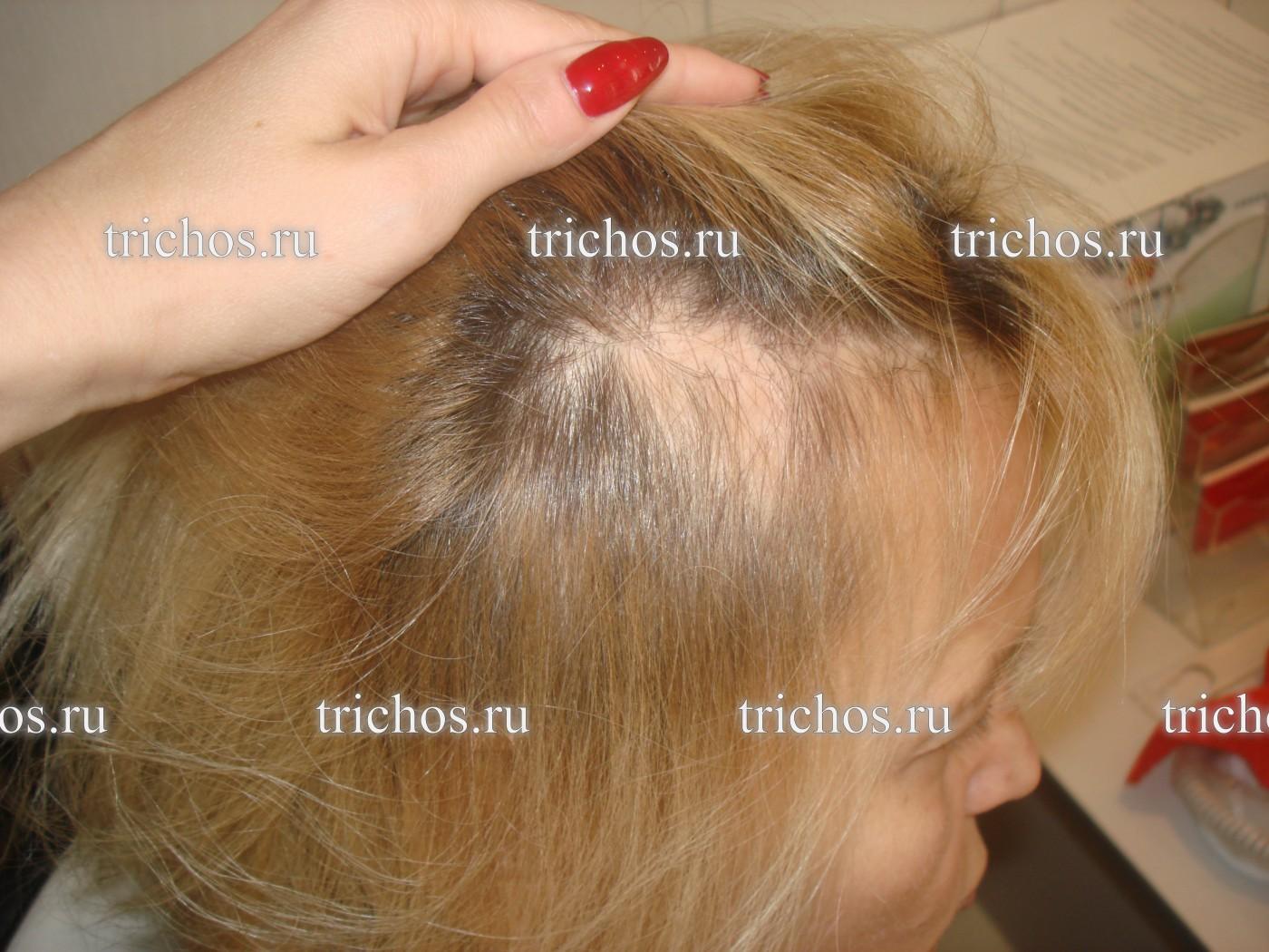 Выпадение волос у женщин: причины и лечение в домашних 96